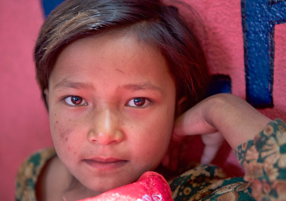 Closeup of child's face PA Nepal