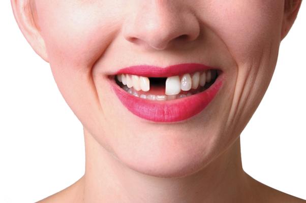 Dentist Highcliffe, Dentist Christchurch