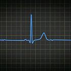 Heartbeatbl_edited_edited.jpg