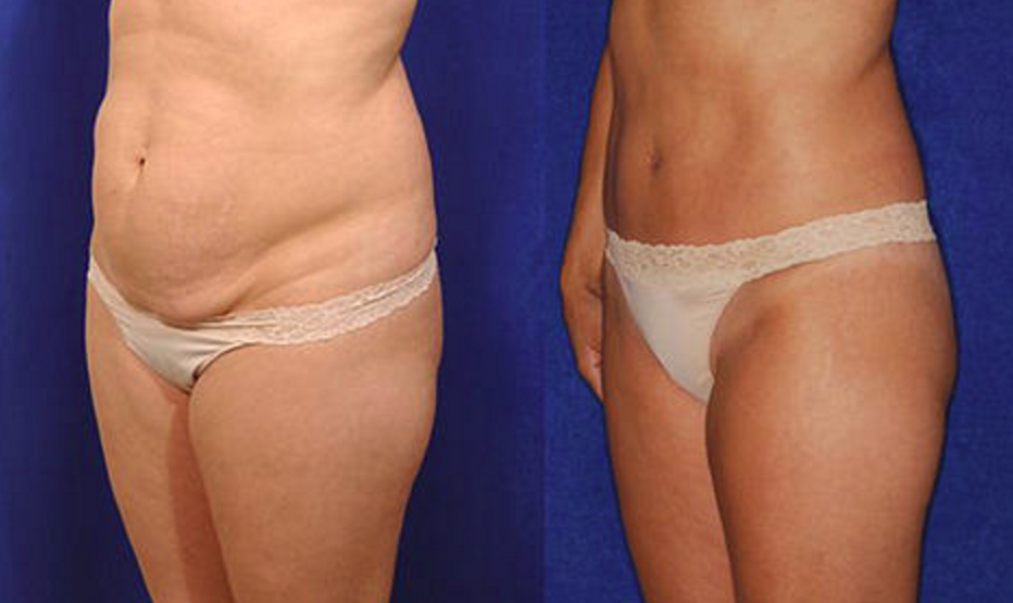 Tummy Tuck - View 2