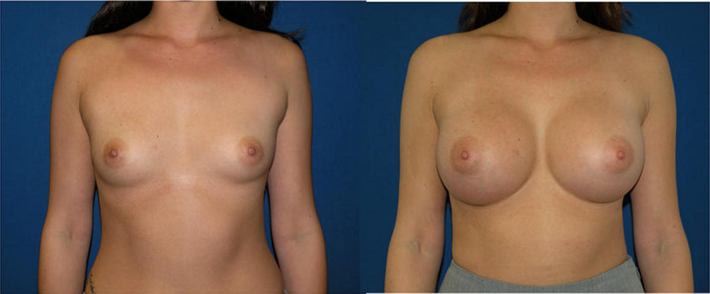 Breast Augmentation, Breast Imimage1
