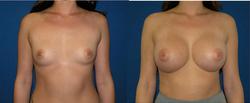 Breast Augmentation, Breast Imimage1