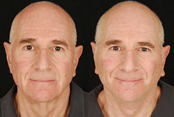 Lower Face & Neck Lift - View 1