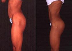 Buttock Augmentation - View 1