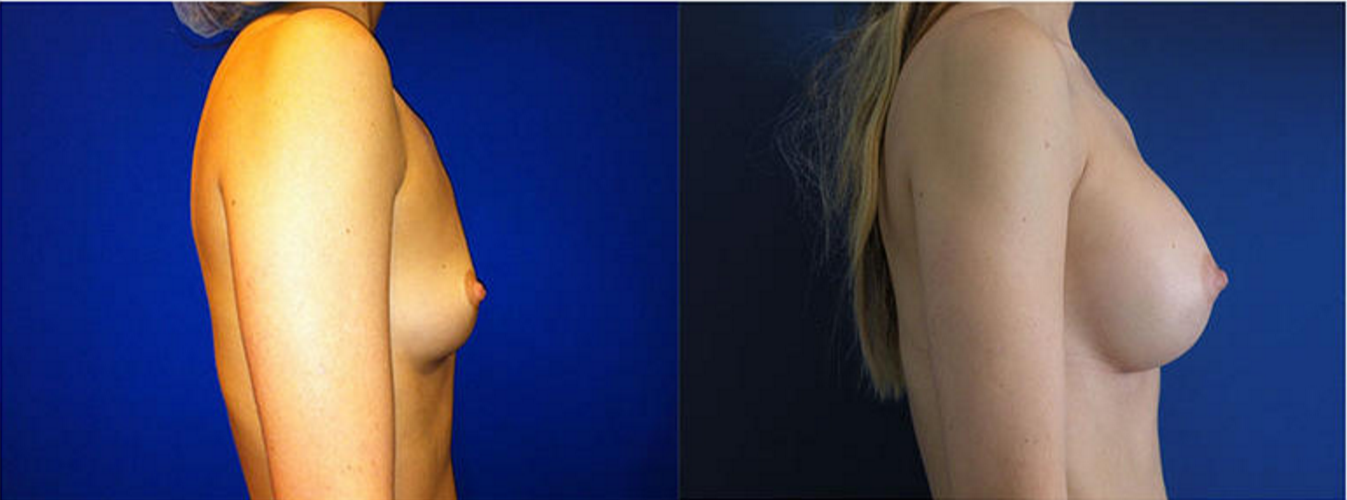 Breast Augmentation, Breast Implants