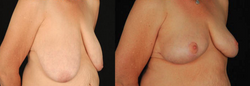 Breast Reduction & Lift- View 2