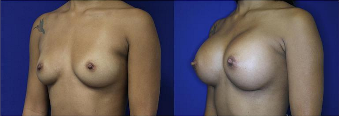 patientBreast Augmentation