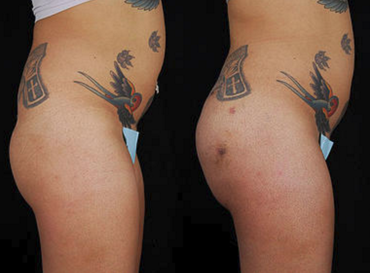 Buttock Augmentation - View 3