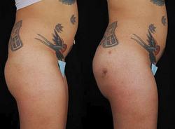 Buttock Augmentation - View 3