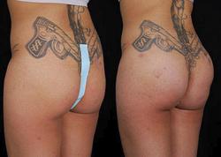 Buttock Augmentation - View 2
