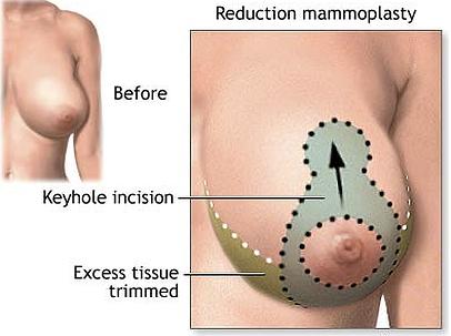 Dr. John Diaz Breast Reduction Specialist