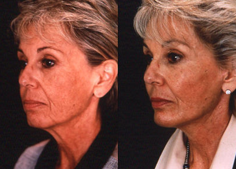 Face & Neck Lift - View 2