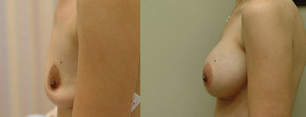 Breast Augmentation - View 3