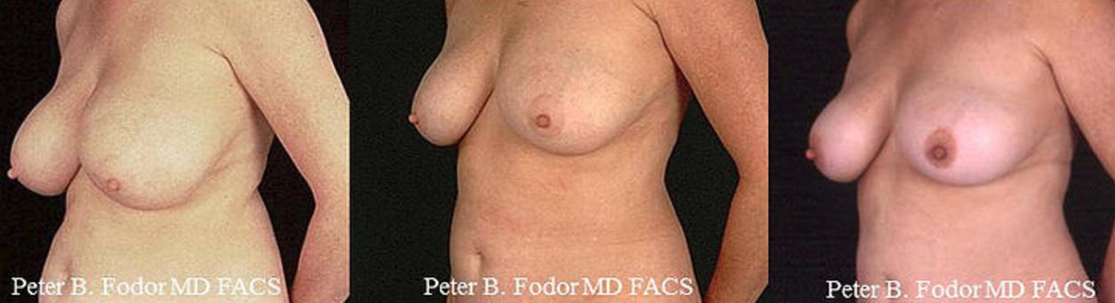 Breast Lift (View 2)