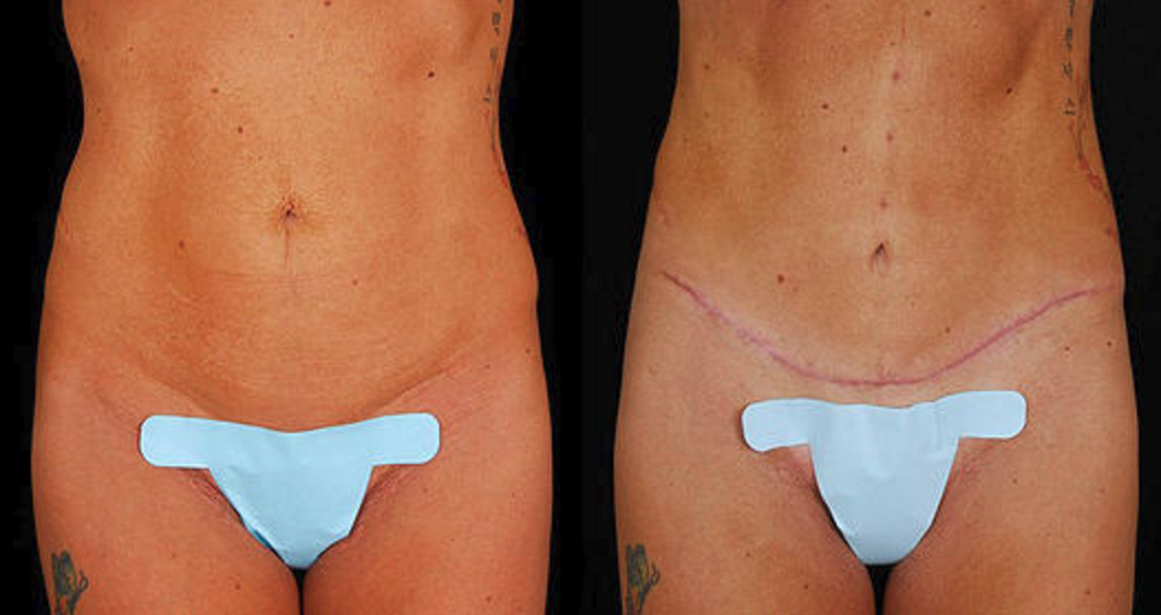 Tummy Tuck - View 1