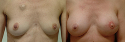 Breast Augmentation - View 1