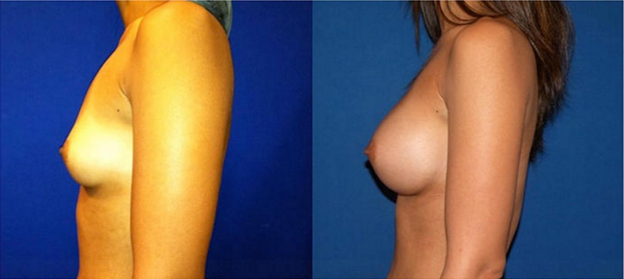 Breast Augmentation, Breast Implant