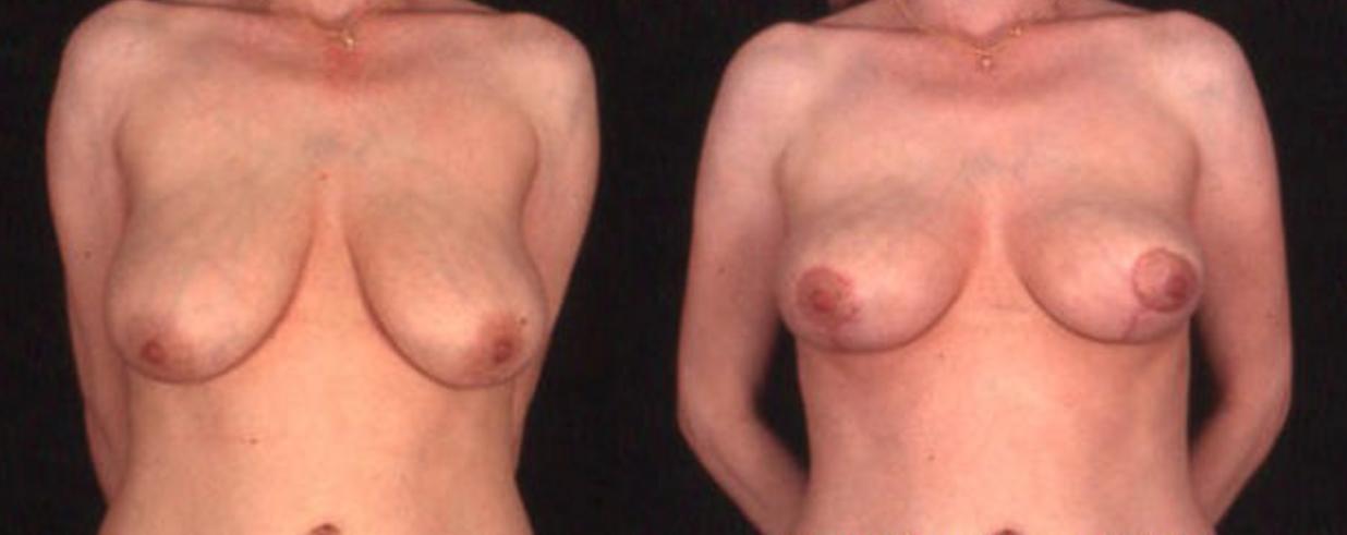 Breast Lift (View 1)
