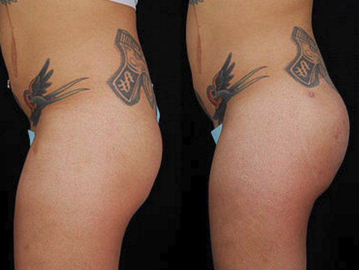 Buttock Augmentation - View 1