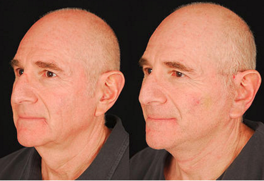 Lower Face & Neck Lift - View 2