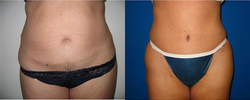 Abdominoplasty Revision