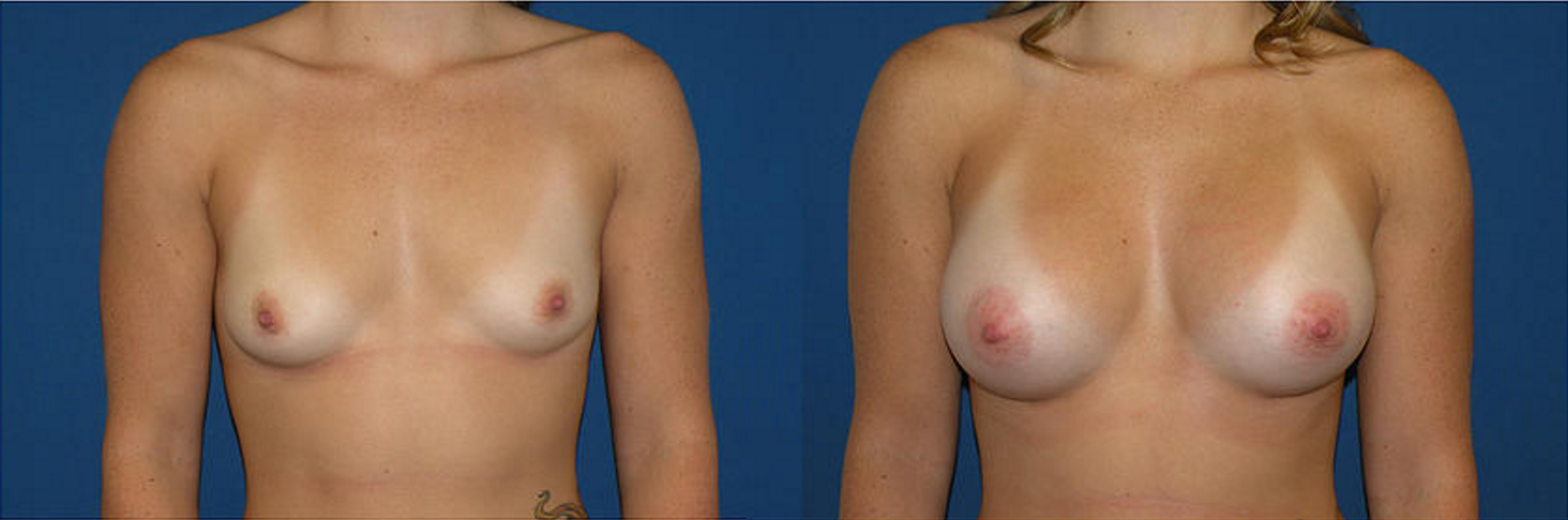Breast Augmentation, Breast Implant1