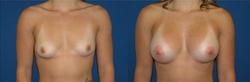 Breast Augmentation, Breast Implant1