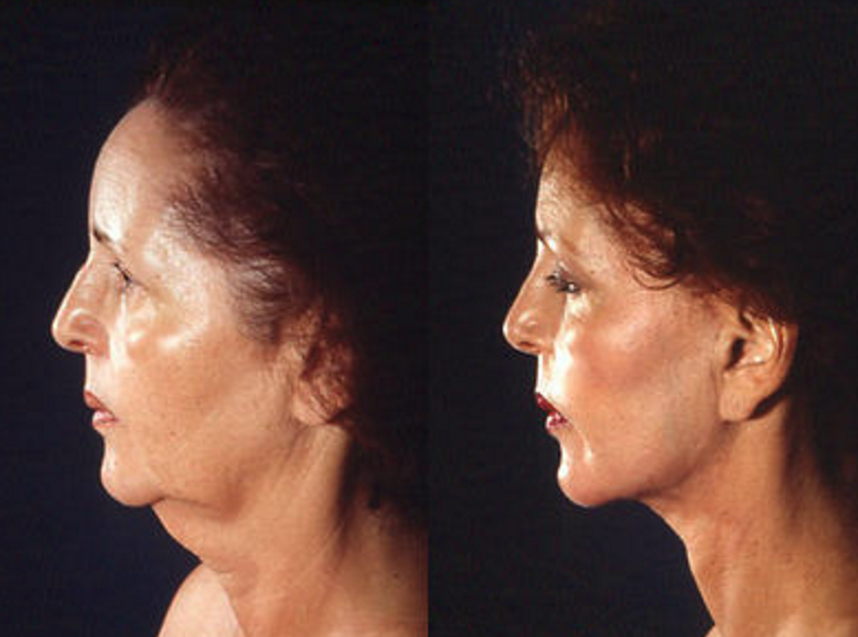 Face & Neck Lift - View 3