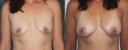 Stem Cell to Bilateral Breast