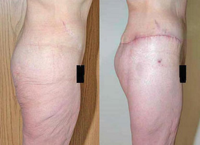 Buttock Augmentation & Body Lift