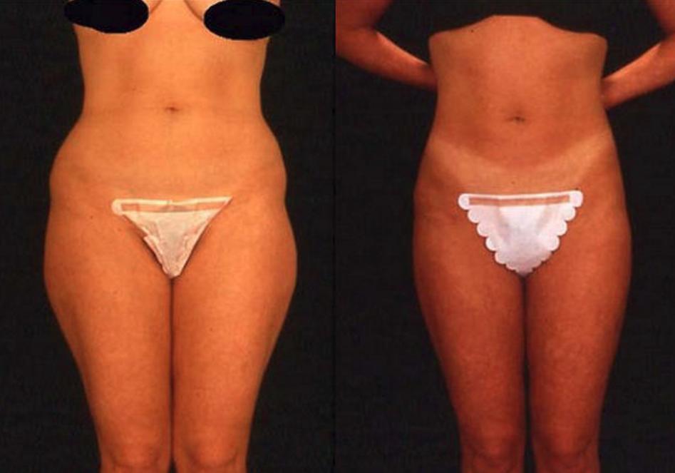 Liposuction - View 1