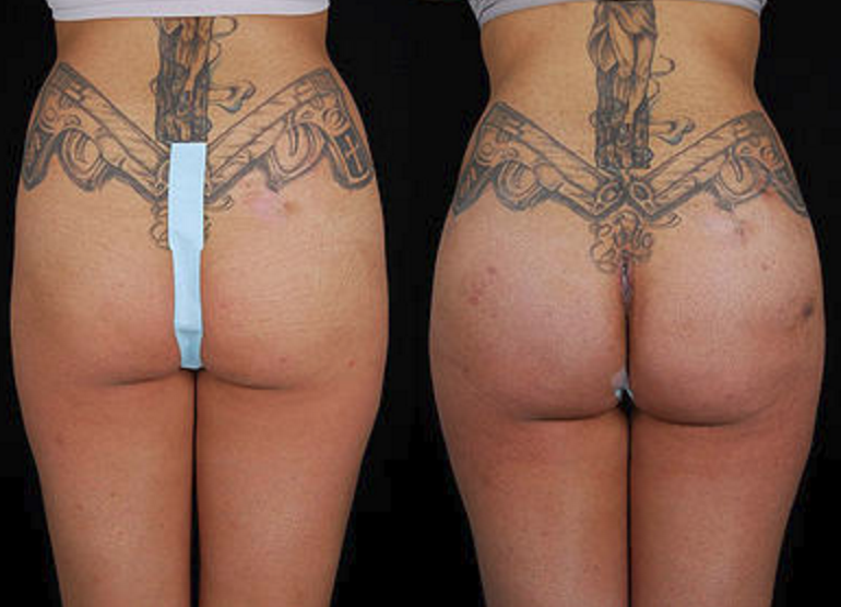 Buttock Augmentation - View 4