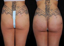 Buttock Augmentation - View 4