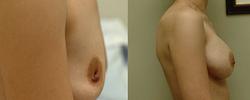 Breast Augmentation - View 5