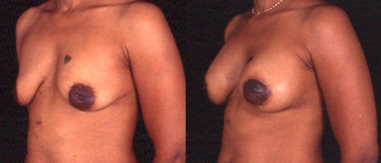 Augmentation and Lift - View 2