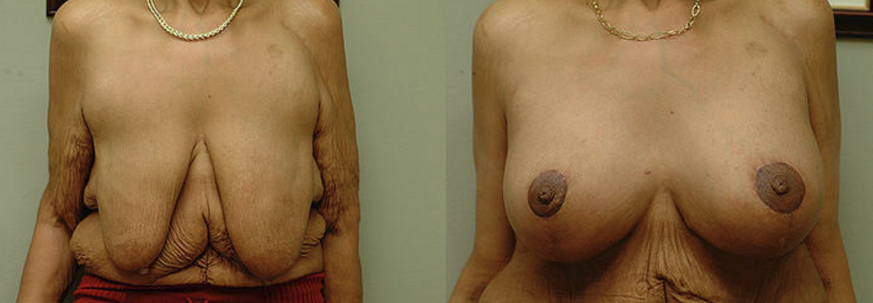 Breast Augmentation & SPAIR