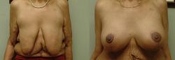 Breast Augmentation & SPAIR
