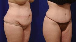 Tummy Tuck - View 2