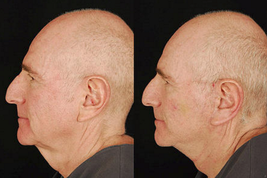Lower Face & Neck Lift - View 3