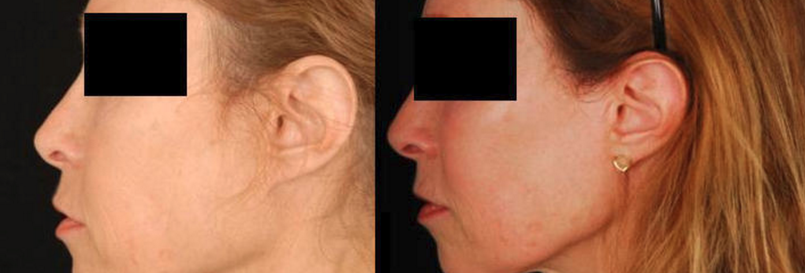 Nefertiti Facelift