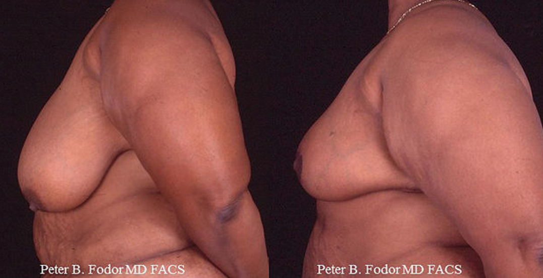 Breast Reduction & Lift- View 3