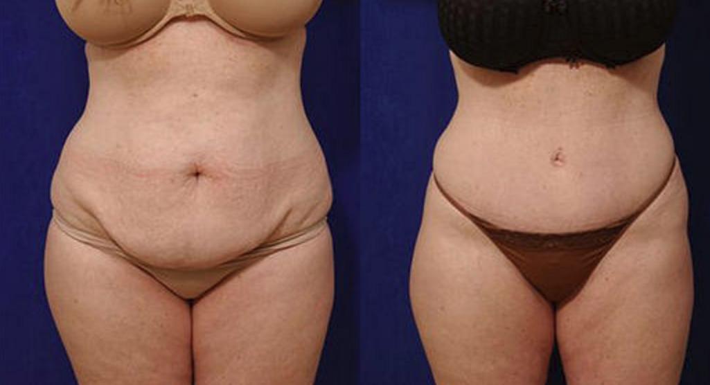 Tummy Tuck - View 1
