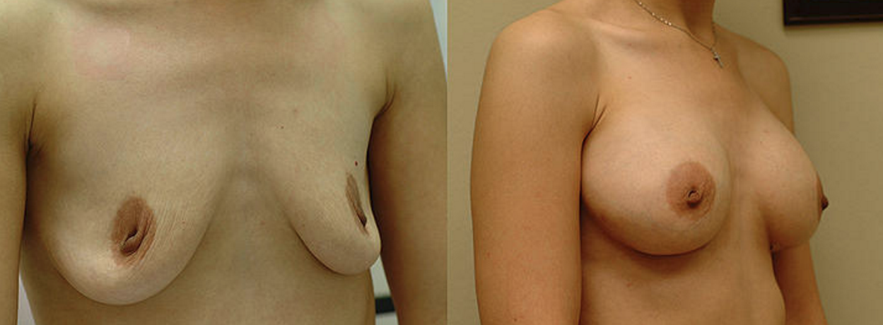 Breast Augmentation - View 4