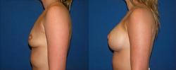 Breast Augmentation, Breast Implant