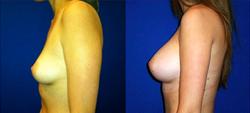 Breast Augmentation, Breast Implants