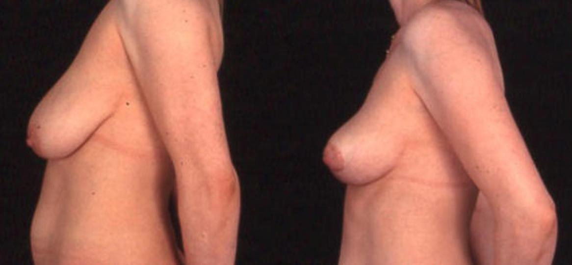 Breast Lift (View 3)