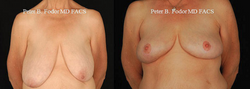 Breast Reduction & Lift- View 1