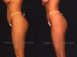Liposuction - View 2