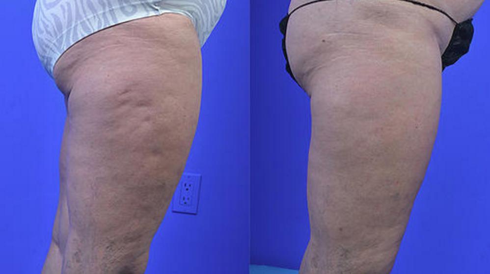 Cellulaze (Cellulite Reduction)