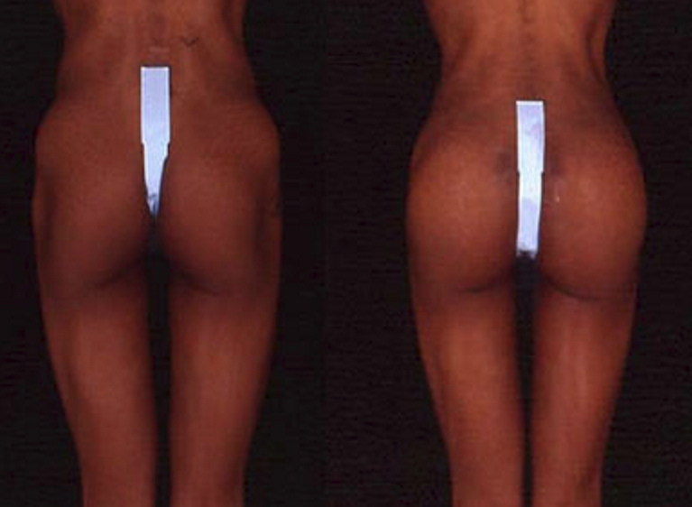 Buttock Augmentation - View 2